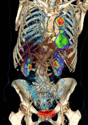 3066e4960b80a2d1481f3871502caf3e--pet-ct-nuclear-medicine.jpg